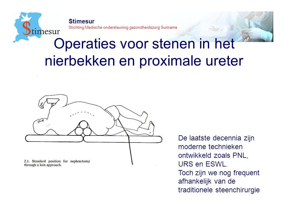 Stimesur Stichting Medische ondersteuning gezondheidszorg Suriname Beleid bij niersteenkoliek (Com.