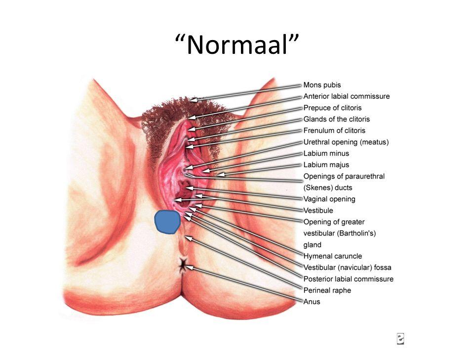 ????? -Fissuren, meestal comm Posterior -vaak gerelateerd aan Gist infectie
