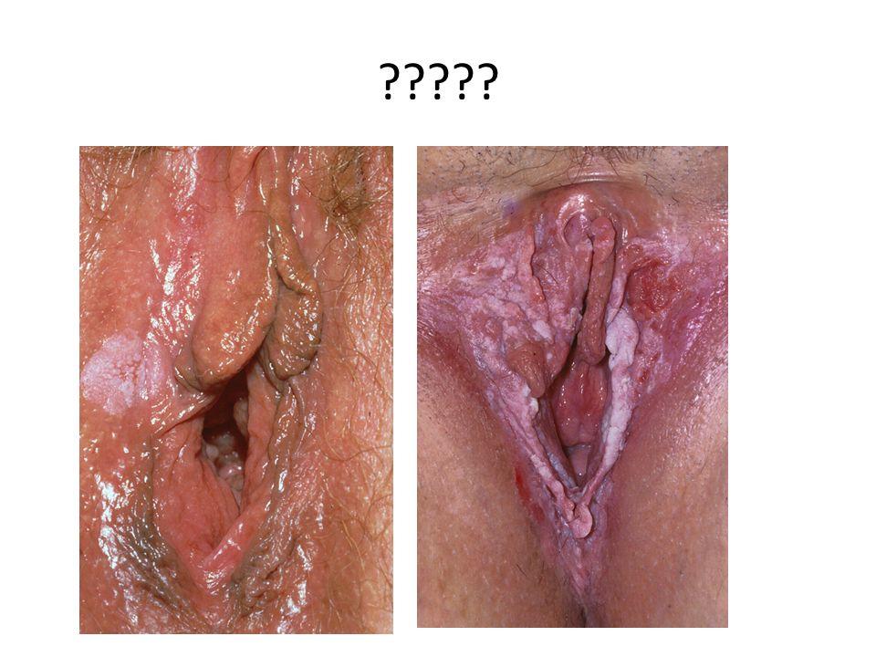 Vulvapoli