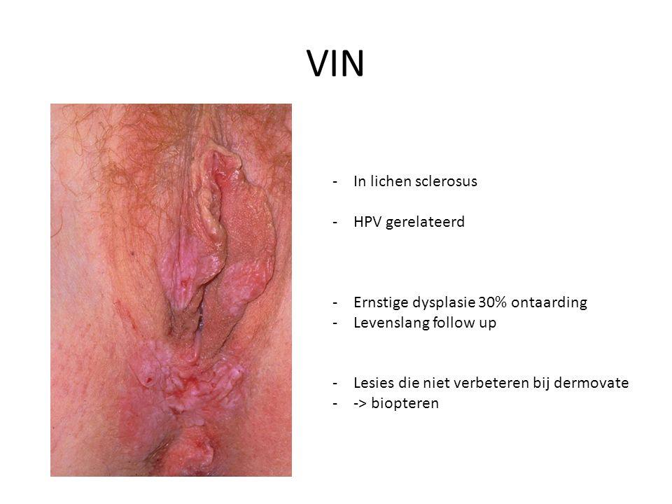 VIN -In lichen sclerosus -HPV gerelateerd -Ernstige dysplasie 30% ontaarding -Levenslang follow up -Lesies die niet verbeteren bij dermovate --> biopteren