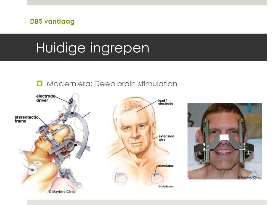 Huidige ingrepen  Modern era: Deep brain stimulation DBS vandaag