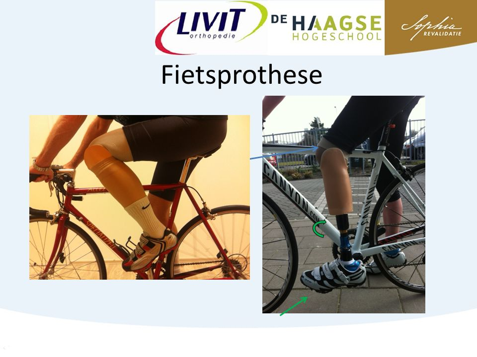 Fietsprothese