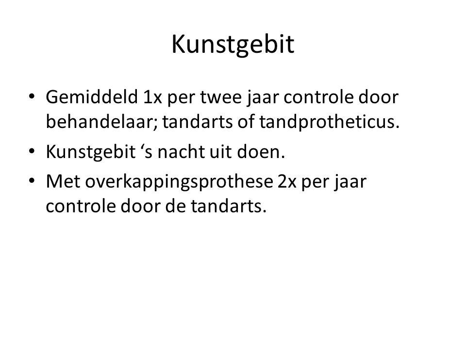 Kunstgebit Gemiddeld 1x per twee jaar controle door behandelaar; tandarts of tandprotheticus.