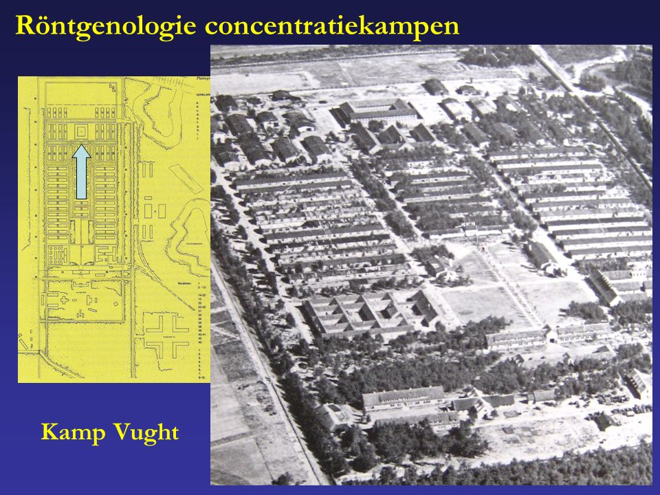 Röntgenologie concentratiekampen Kamp Vught