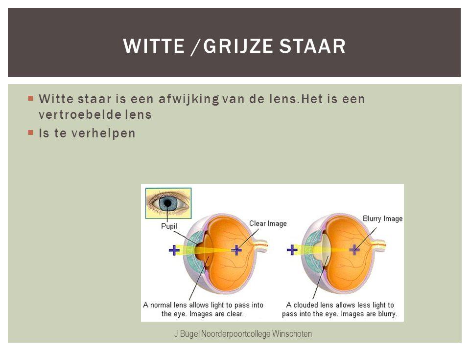  Witte staar is een afwijking van de lens.Het is een vertroebelde lens  Is te verhelpen J Bügel Noorderpoortcollege Winschoten WITTE /GRIJZE STAAR