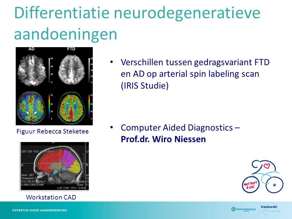 Differentiatie neurodegeneratieve aandoeningen Verschillen tussen gedragsvariant FTD en AD op arterial spin labeling scan (IRIS Studie) Computer Aided Diagnostics – Prof.dr.