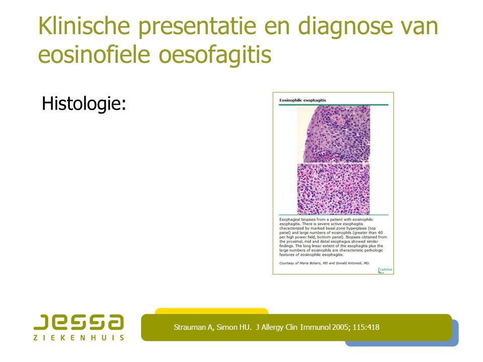 Klinische presentatie en diagnose van eosinofiele oesofagitis Histologie: Strauman A, Simon HU. J Allergy Clin Immunol 2005; 115:418