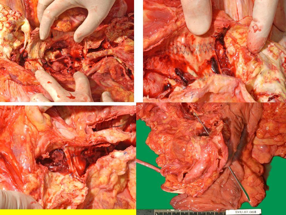 Behandelprincipes Aorto-enterale fistels Afklemmen aorta Sluiten darmdefect omentumplastiek Herstel de circulatie naar distaal: In situ: Anatomisch : eigen materiaal: diepe Venen nieuwe graft oa Ag/AB gecoat Homograft ( Aorta-bank) Bedek prothese/Aorta met Omentum: Stofzuiger Buik Extra-anatomisch: Aorta stomp sluiten, graft resectie, omentumplastiek, axillo-bifem/Popl Altijd Antibiotica .