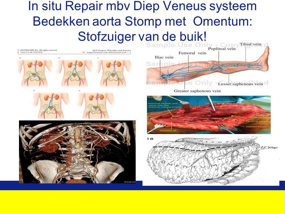 In situ Repair mbv Diep Veneus systeem Bedekken aorta Stomp met Omentum: Stofzuiger van de buik!
