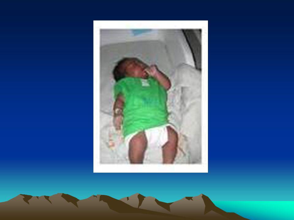Casus 1 Linda, geboren 13-11-2009 Reden van opname: prematuriteit Maternale gegevens: moeder 37jaar, G2P1+0, sikkelcellen positief, anemie en gewichtstilstand, regelmatige prenatale controle, sinds 29ste week stuitligging