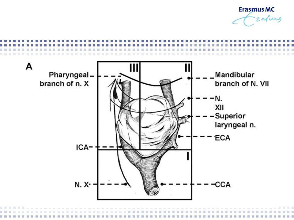 Leidse serie – craniocaudal dissection  1963 – 2005  111 glomus caroticum resecties in 94 patiënten  39 Shamblin I (56%)  22 Shamblin II (32%)  8 Shamblin III (12%)  Twee verschillende technieken vergeleken (1992) Van der Bogt: Resection of carotid body tumors.