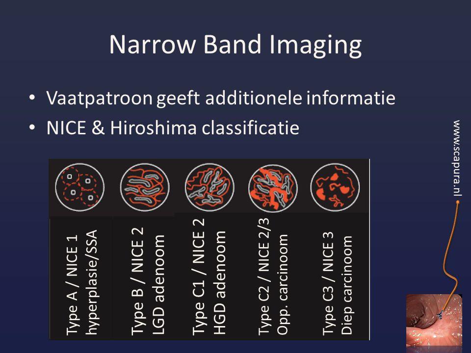 Narrow Band Imaging Vaatpatroon geeft additionele informatie NICE & Hiroshima classificatie www.scapura.nl Type A / NICE 1 hyperplasie/SSA Type B / NICE 2 LGD adenoom Type C1 / NICE 2 HGD adenoom Type C2 / NICE 2/3 Opp.