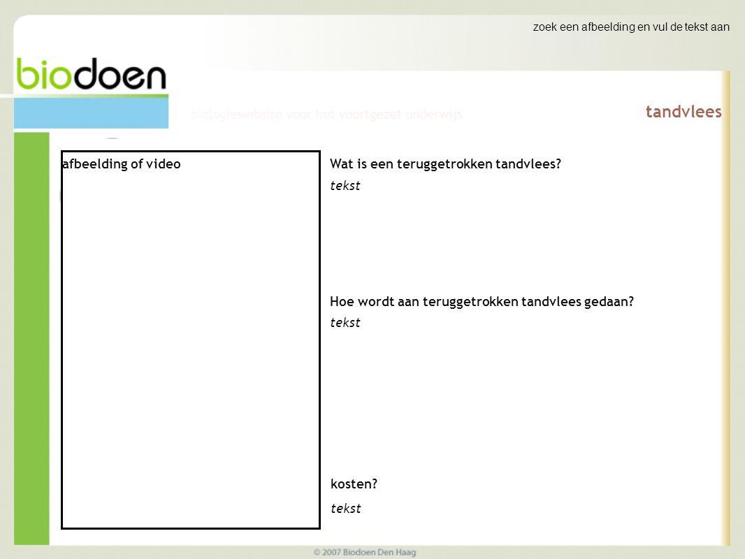 zoek een afbeelding en vul de tekst aan tandvlees afbeelding of video Wat is een teruggetrokken tandvlees.