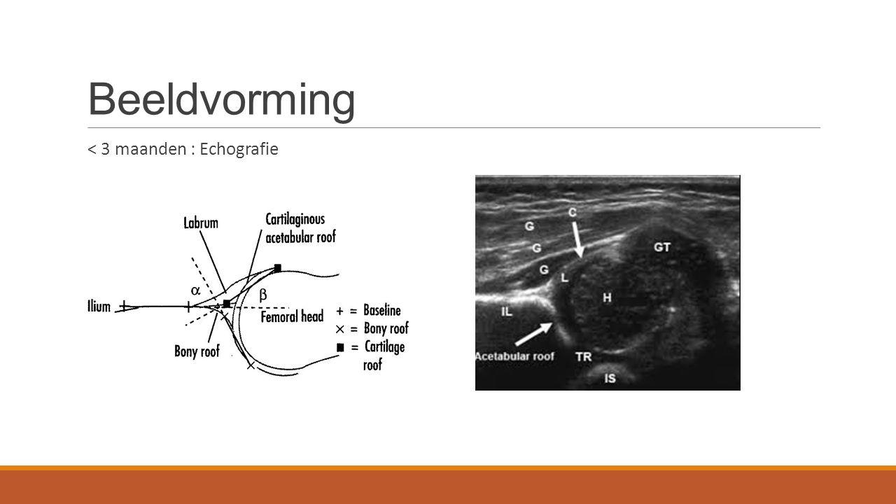 Beeldvorming < 3 maanden : Echografie