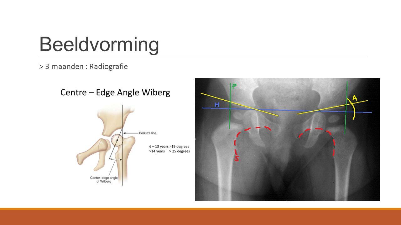 Beeldvorming > 3 maanden : Radiografie