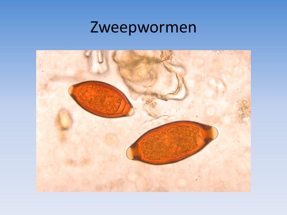 Zweepwormen