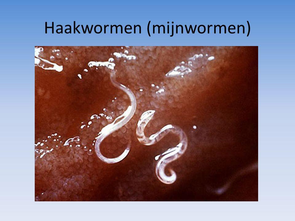 Haakwormen (mijnwormen)