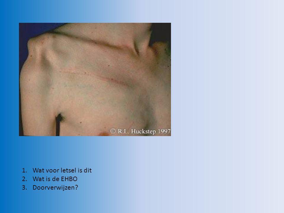 Botbreuk pols EHBO: - rust en steun geven met behulp van mitella Doorverwijzen?  ja