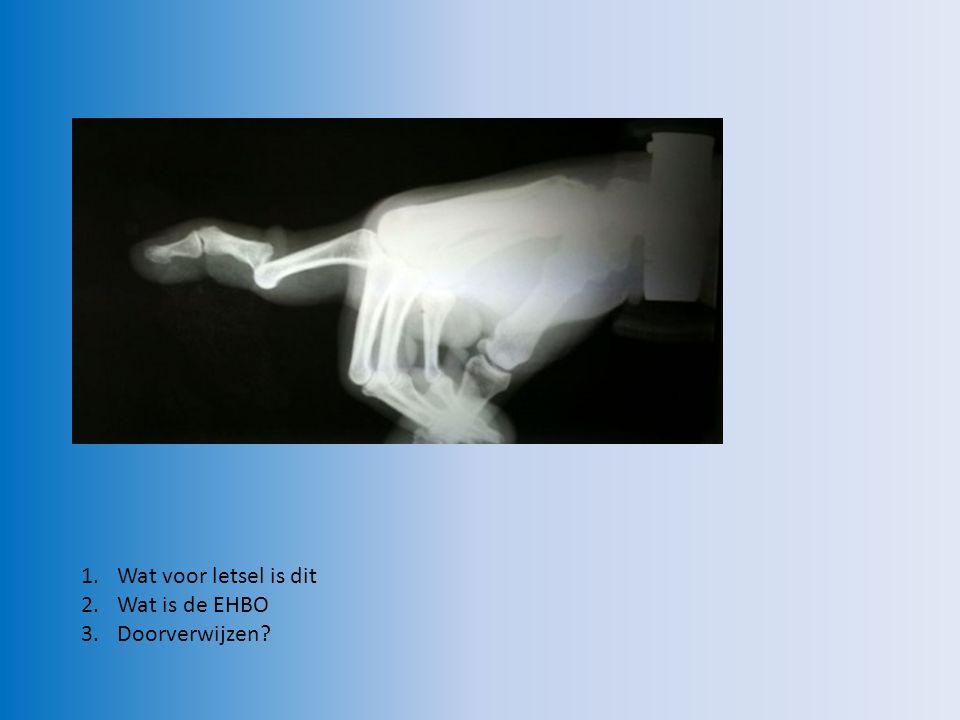 Vinger uit de kom (ontwrichting) EHBO: - rust en steun geven met behulp van mitella Doorverwijzen.