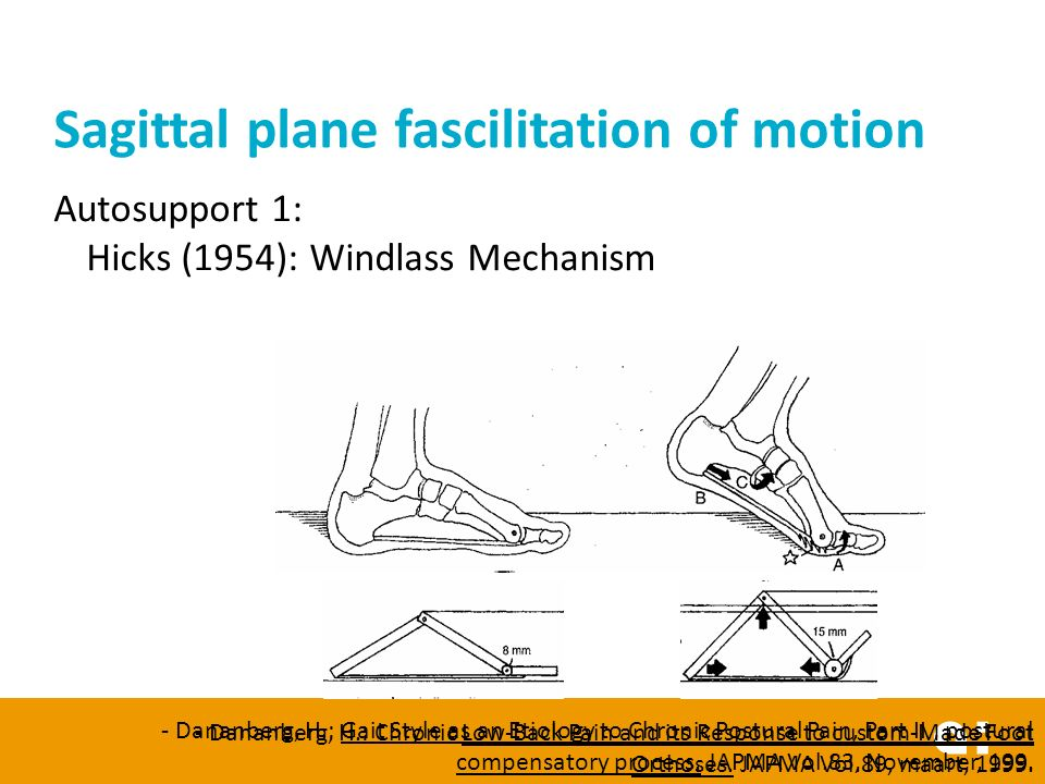 Autosupport 1: Hicks (1954): Windlass Mechanism Sagittal plane fascilitation of motion - Dananberg, H.: Gait Style as an Etiology to Chronic Postural