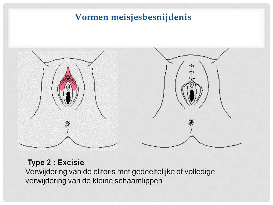 Vormen meisjesbesnijdenis Type 2 : Excisie Verwijdering van de clitoris met gedeeltelijke of volledige verwijdering van de kleine schaamlippen.