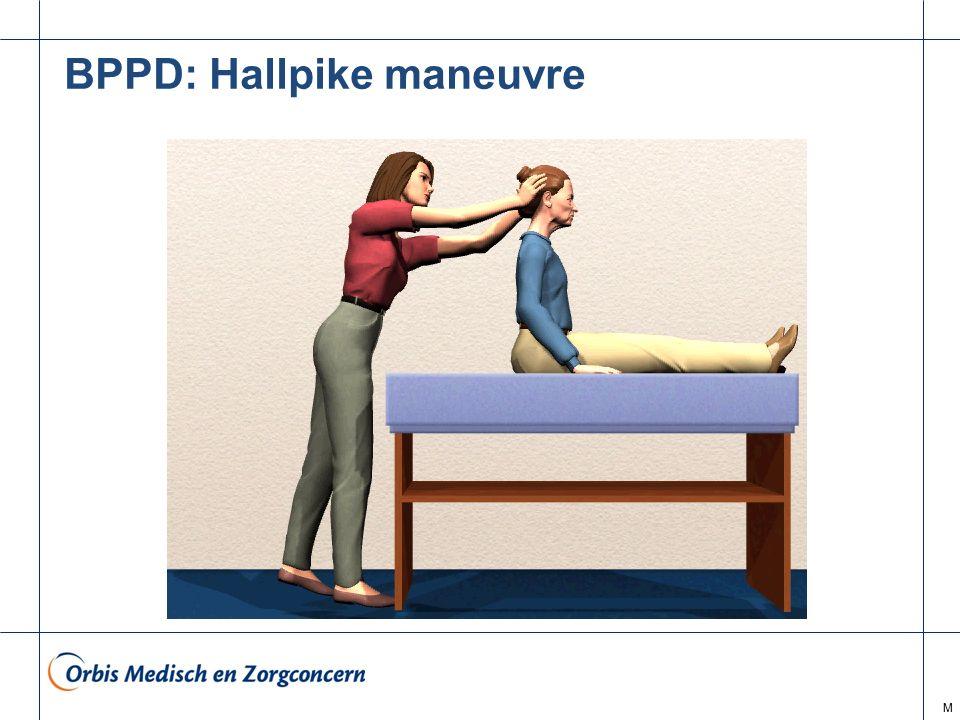 M BPPD: Hallpike maneuvre