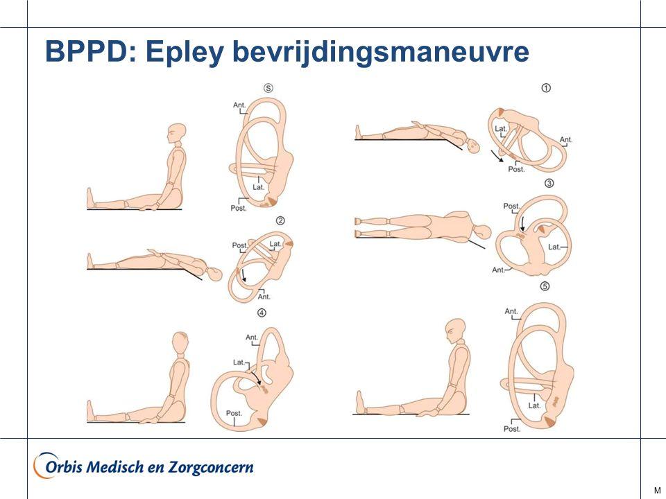M BPPD: Epley bevrijdingsmaneuvre