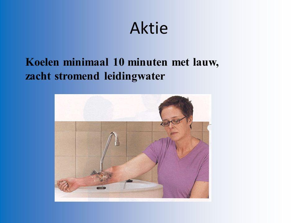 Koelen minimaal 10 minuten met lauw, zacht stromend leidingwater Aktie