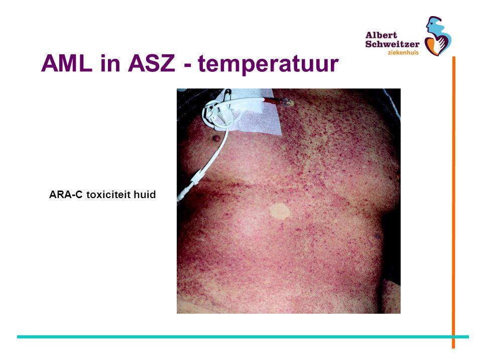 AML in ASZ - temperatuur ARA-C toxiciteit huid