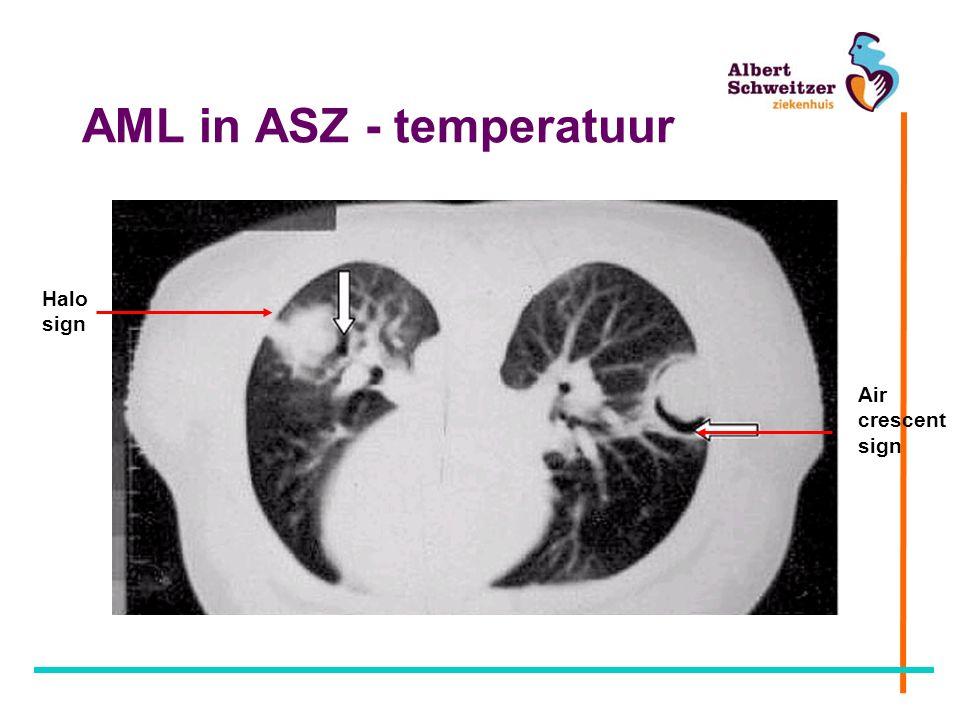 AML in ASZ - temperatuur Air crescent sign Halo sign