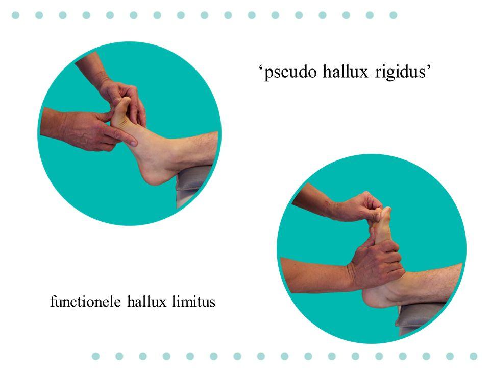 'pseudo hallux rigidus' functionele hallux limitus
