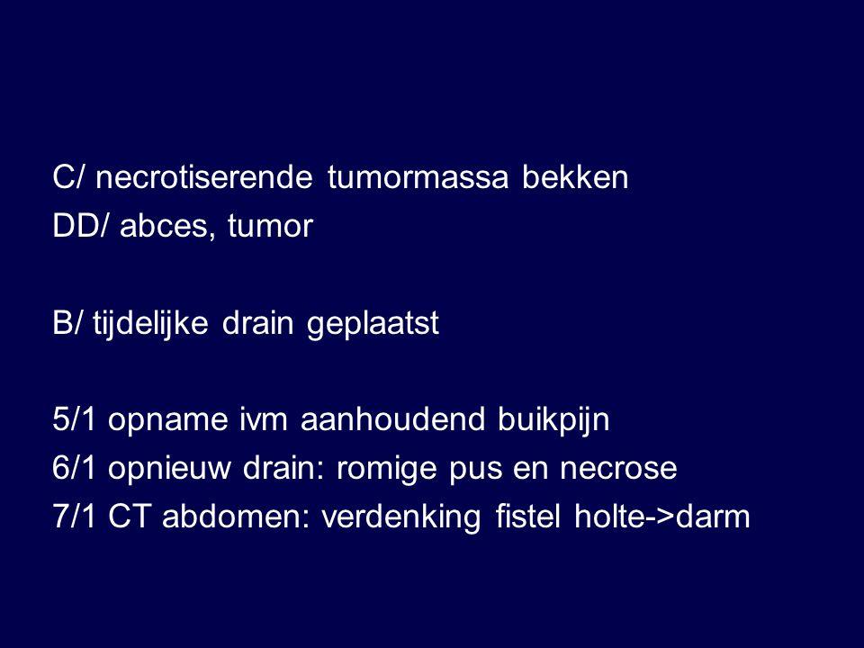 C/ necrotiserende tumormassa bekken DD/ abces, tumor B/ tijdelijke drain geplaatst 5/1 opname ivm aanhoudend buikpijn 6/1 opnieuw drain: romige pus en necrose 7/1 CT abdomen: verdenking fistel holte->darm
