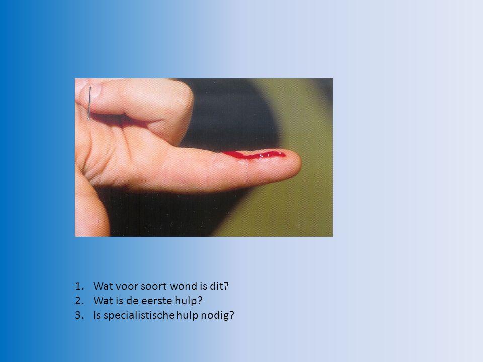 snijwond EHBO: – Afdekken met wonddekverband of pleister – Mitella .