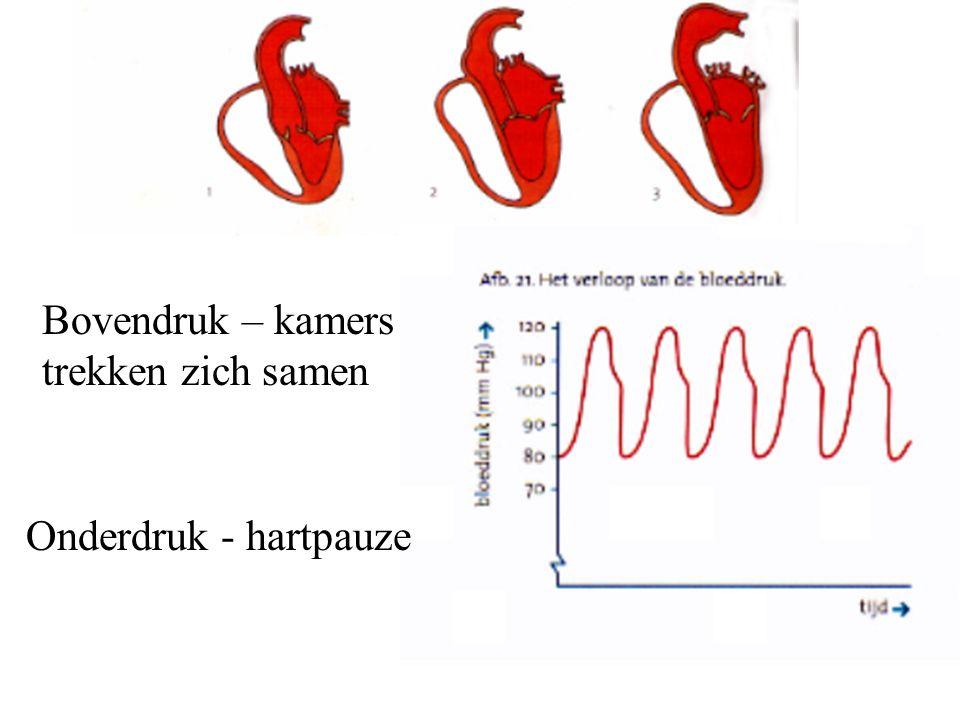 Bovendruk – kamers trekken zich samen Onderdruk - hartpauze