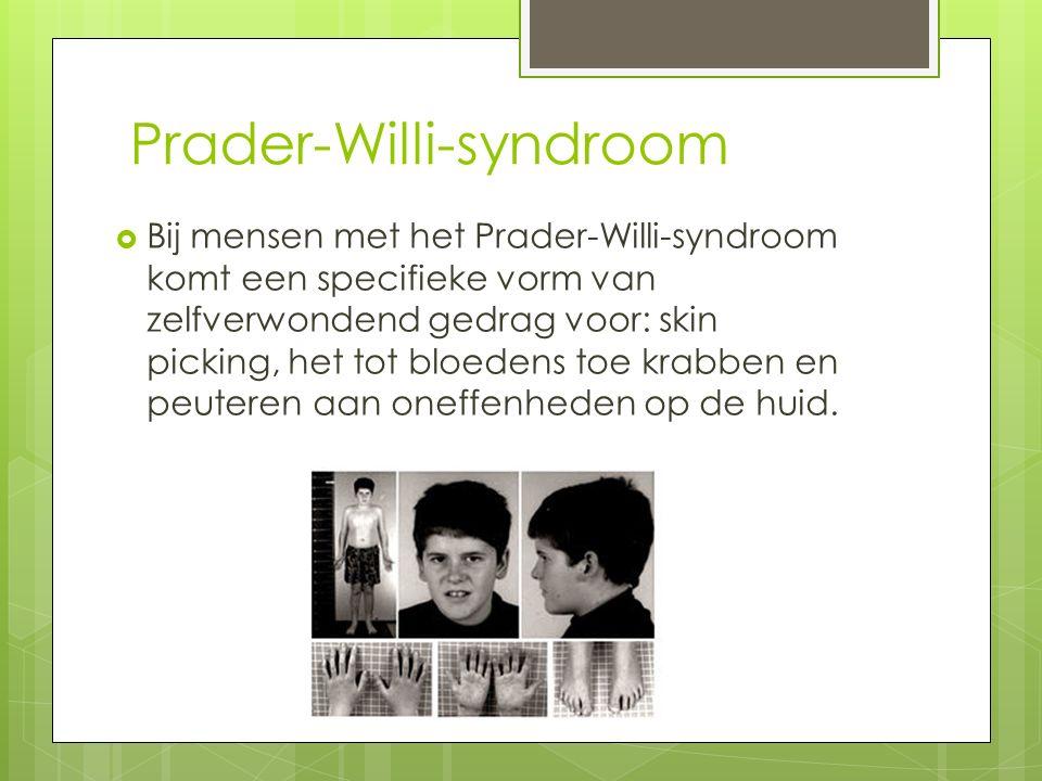 Prader-Willi-syndroom  Bij mensen met het Prader-Willi-syndroom komt een specifieke vorm van zelfverwondend gedrag voor: skin picking, het tot bloedens toe krabben en peuteren aan oneffenheden op de huid.