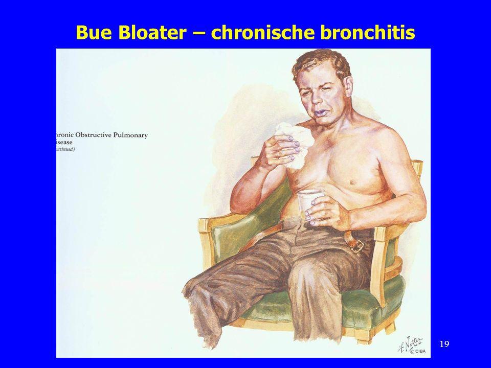 Bue Bloater – chronische bronchitis 19