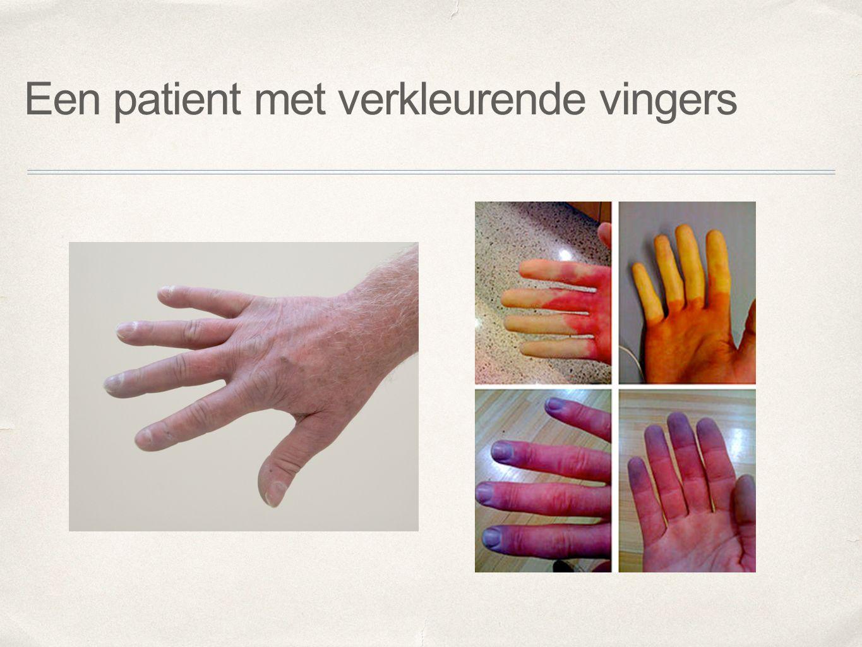 Een patient met verkleurende vingers