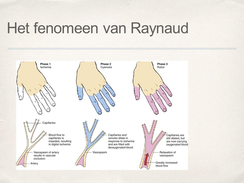 Het fenomeen van Raynaud