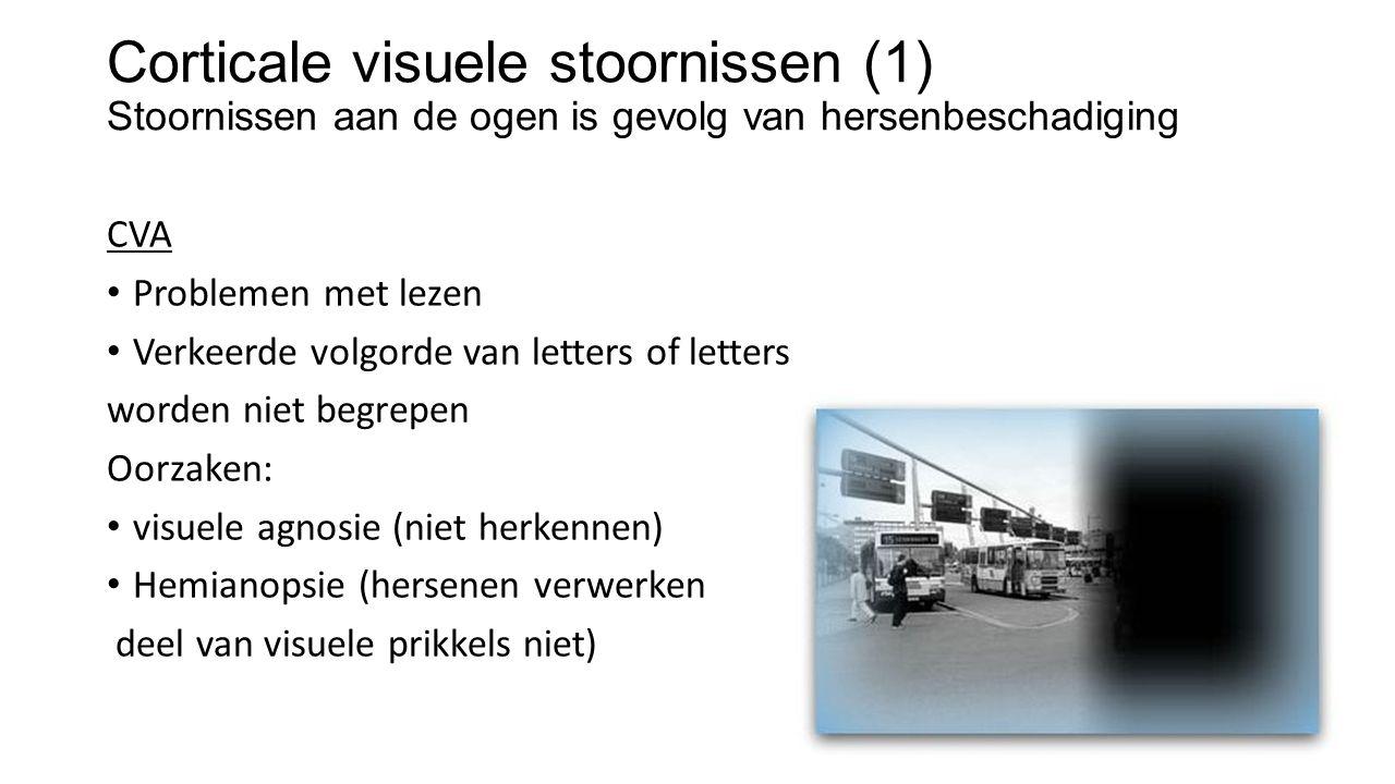 Corticale visuele stoornissen (1) Stoornissen aan de ogen is gevolg van hersenbeschadiging CVA Problemen met lezen Verkeerde volgorde van letters of letters worden niet begrepen Oorzaken: visuele agnosie (niet herkennen) Hemianopsie (hersenen verwerken deel van visuele prikkels niet)