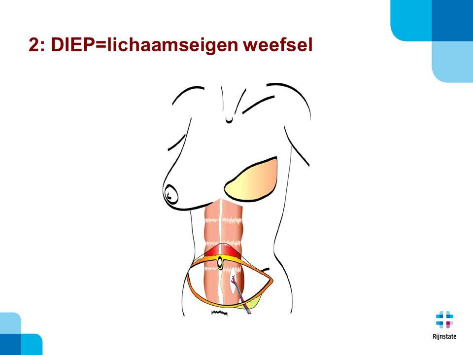 2: DIEP=lichaamseigen weefsel