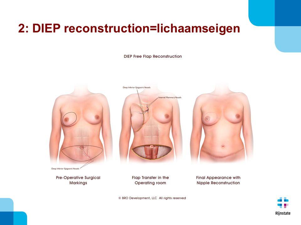 2: DIEP reconstruction=lichaamseigen