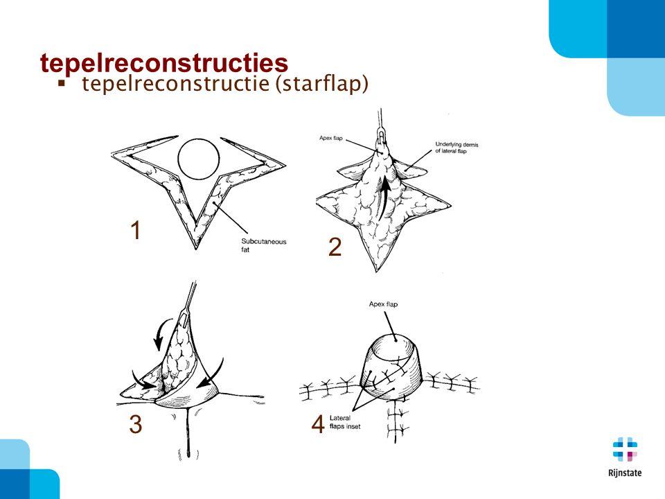1 2 34  tepelreconstructie (starflap) tepelreconstructies