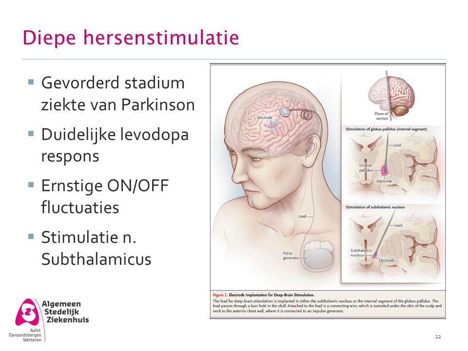 Diepe hersenstimulatie  Gevorderd stadium ziekte van Parkinson  Duidelijke levodopa respons  Ernstige ON/OFF fluctuaties  Stimulatie n. Subthalami