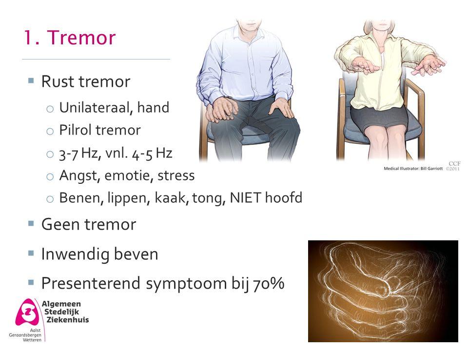 1. Tremor  Rust tremor o Unilateraal, hand o Pilrol tremor o 3-7 Hz, vnl. 4-5 Hz o Angst, emotie, stress o Benen, lippen, kaak, tong, NIET hoofd  Ge