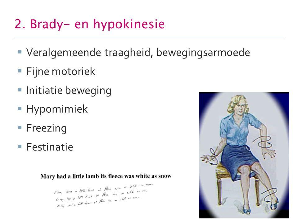 2. Brady- en hypokinesie  Veralgemeende traagheid, bewegingsarmoede  Fijne motoriek  Initiatie beweging  Hypomimiek  Freezing  Festinatie 6