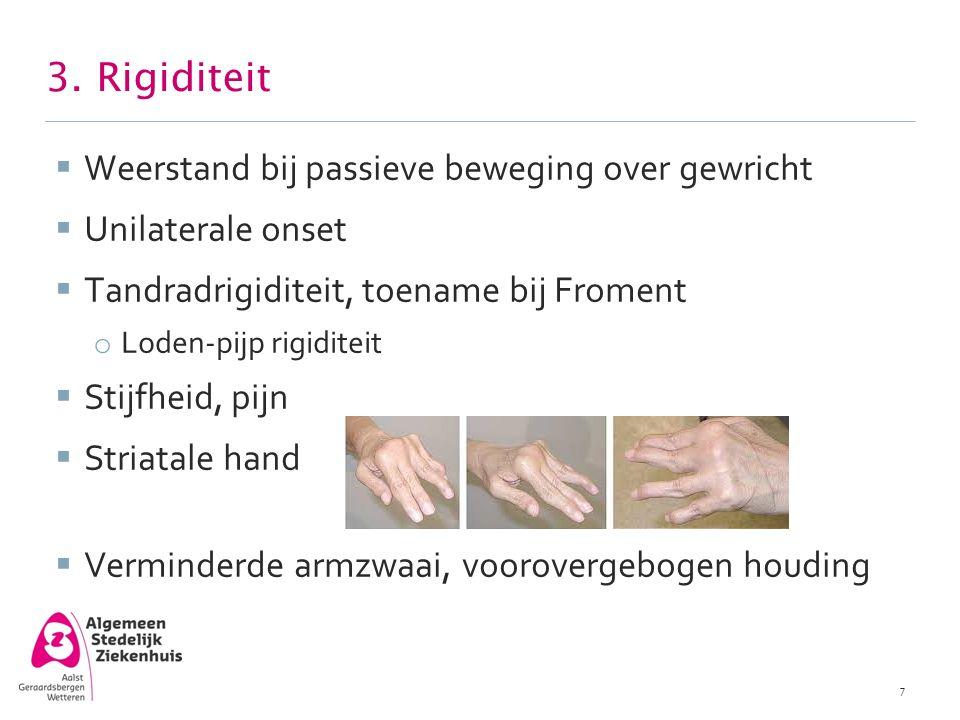 3. Rigiditeit  Weerstand bij passieve beweging over gewricht  Unilaterale onset  Tandradrigiditeit, toename bij Froment o Loden-pijp rigiditeit  S