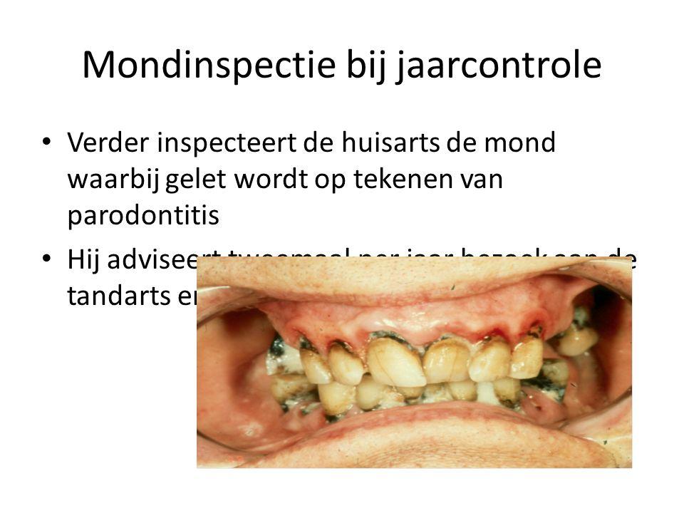 Mondinspectie bij jaarcontrole Verder inspecteert de huisarts de mond waarbij gelet wordt op tekenen van parodontitis Hij adviseert tweemaal per jaar