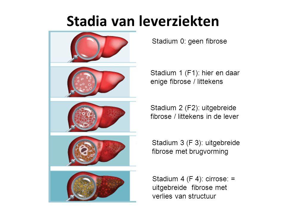 Stadia van leverziekten Stadium 0: geen fibrose Stadium 1 (F1): hier en daar enige fibrose / littekens Stadium 2 (F2): uitgebreide fibrose / littekens