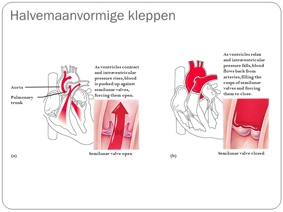 Halvemaanvormige kleppen As ventricles contract and intraventricular pressure rises, blood is pushed up against semilunar valves, forcing them open.