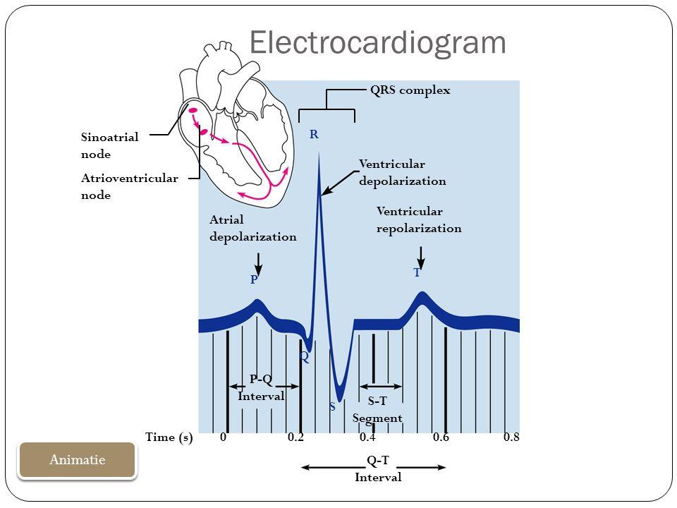 Electrocardiogram Sinoatrial node Atrioventricular node QRS complex Atrial depolarization Ventricular depolarization Ventricular repolarization P-Q In